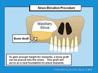 Sinus Elevation Procedure