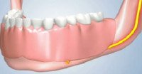 Dentures will Cause Jaw Bone To Shrink Underneath