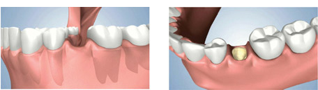 Dental Implant Bone Preservation