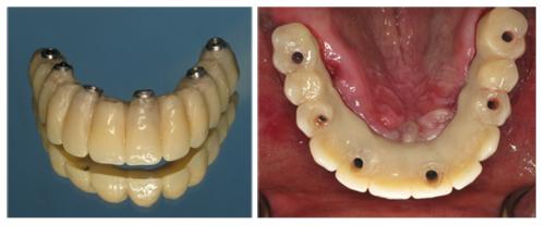Benefits of Fixed Dental Implants