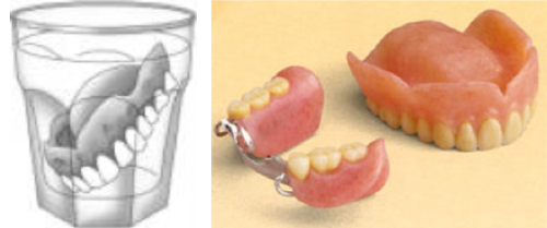 Daily Removal and Cleaning of Dentures