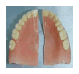 Common Broken Dentures due to Fragility