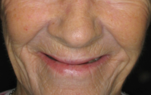 Sunken Face Caused by Dentures