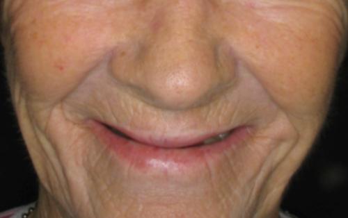 Full Denture Complications NYC & NJ | Full Dentures vs Dental Implants