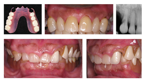Images of dentures causing adjacent teeth to become loose