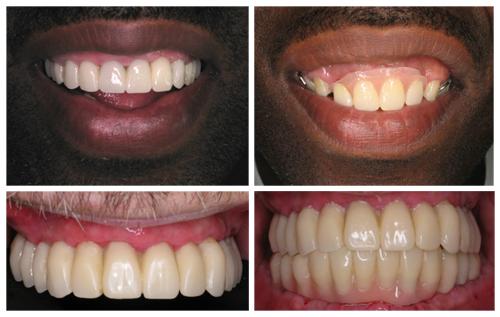 Poor Aesthetics Caused by Dentures