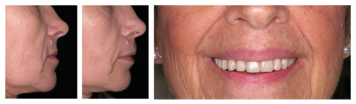 Dentures Can Cause Your Lips to Appear Enlarged or Bulky