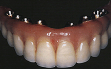 Implant Teeth, which do not impair speech