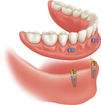 Mini Dental Implants Locator