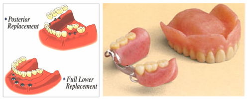 Dental Implants for Posterior Teeth Replacement