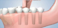 Dental Implants to Replace Several Missing Teeth