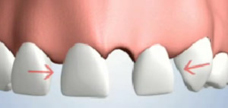 Teeth Shifting Due to Single Tooth Loss