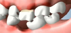 Periodontal Disease Developing after Tooth Loss