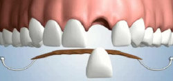 Single Tooth Replacement with Removable Partial Dentures NYC