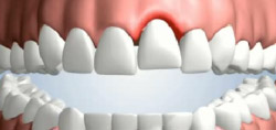 Removeable Partial Denture causing irritation to gums