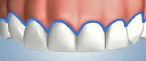 Symmetrical Healthy Gums