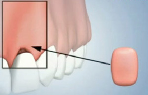 Gum Tissue Augmentation