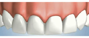 Dental Implant and Gum Restoration