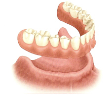 Removable Full Denture