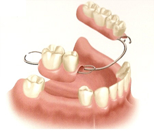 Removable Partial Dentures NYC