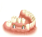 Dental Implant Supported Bridge NYC