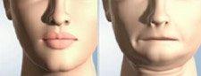 Loss of Natural Jaw Shape