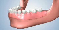 Pros and Cons of Full Dentures