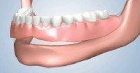 Full Dentures New York City