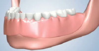 Full Lower Denture Placement