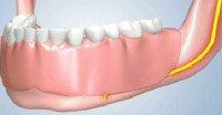 Dentures will Cause Jaw Bone To Shrink Underneath