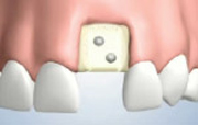 Membrane Placement for Bone Grafting