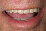 All on Four Titled Dental Implants