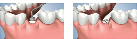 Tooth Root Replacement Process