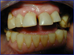 Overeruption of the Teeth
