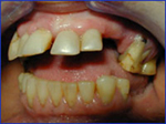 Tooth Loss Induced Splaying and Overeruption