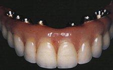 Implant Teeth, which do not impair speech