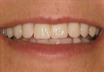 Results from Mini-Implant Supported Overdentures
