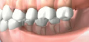 Consequences of Missing Several Teeth