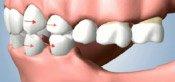 Teeth drifting towards open space