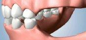 Jawbone Preservation Techniques