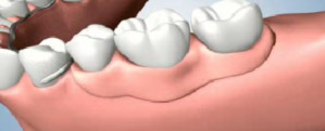 Partial Denture Sitting Over the Gums