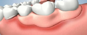 Shifting Removable Partial Dentures