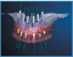 3D Virtual Model of Jaw to be used for NYC Dental Implants