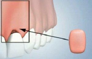 Gum Tissue Augmentation