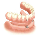 Overdenture Seated on Ball Attachment