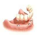 Fixed Bridge on Dental Implants