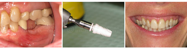 All-White Zirconia Metal Free Implants