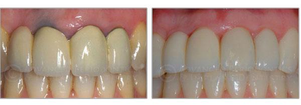 Metal-Free Dental Implants NYC