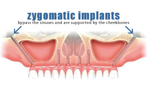 Graftless Zygomatic Implants New York City