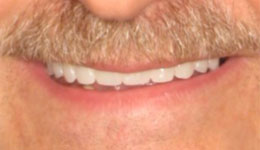 Avoid Dentures with Smile in a Day